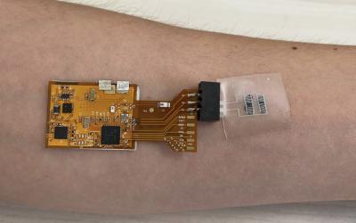 Technion: Israelis entwickeln Sensorenpflaster zur Tuberkulose-Erkennung